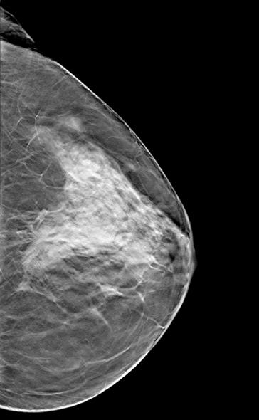 dense breast tissue