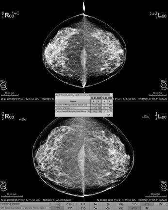 Fibroglandular densities & Mammographic Breast Density | ITN