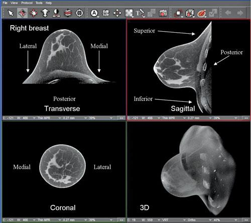 breast CT, advances in ct, advances in computed tomography, CT innovations