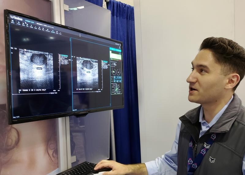 In a demonstration on the exhibit floor of the SBI symposium, Koios software identified suspicious lesions in ultrasound images