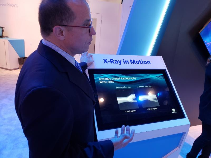 "Konica Minolta showcased at RSNA 2018 a work-in-progress that gives new meaning to the word ""dynamic."""
