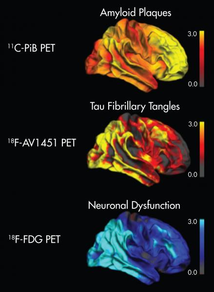 SNMMI, Image of the Year 2016, PET, Alzheimer's disease, amyloid plaques