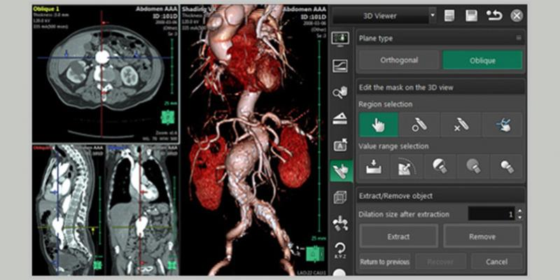 Fujifilm's Synapse 3D delivers clinical value through consistently accurate and fast image processing for radiology, cardiology and surgical pre-operational simulation.