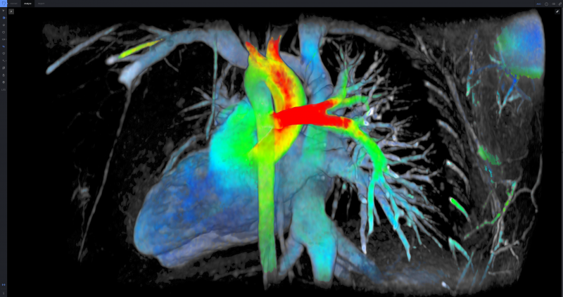 GE ViosWorks, now with Arterys software, large image datasets of the whole chest can be post processed and evaluated in real-time via cloud technology.