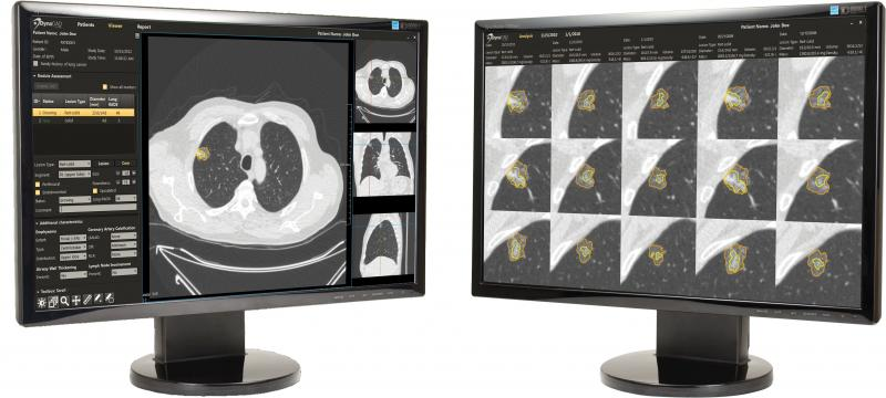lung cancer, low dose CT screening, nodules, cancerous, Icahn, Mount Sinai