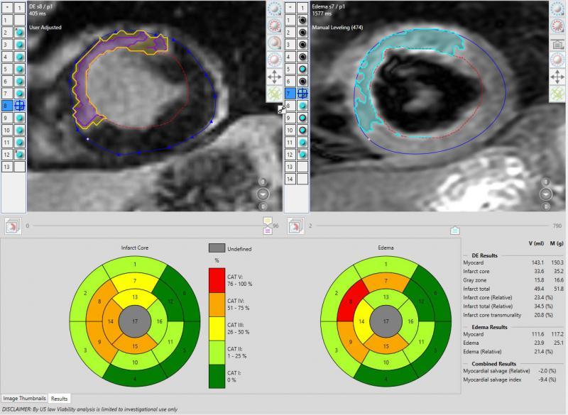 Will Cardiac MRI Expand? | Imaging Technology News