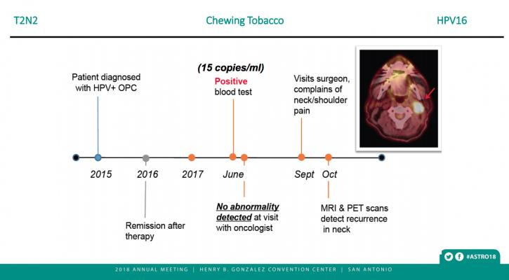 Biomarker blood test accurately confirms remission in a chewing tobacco user with HPV-associated oral cancer. At ASTRO 2018 #ASTRO2018 #ASTRO #ASTRO18