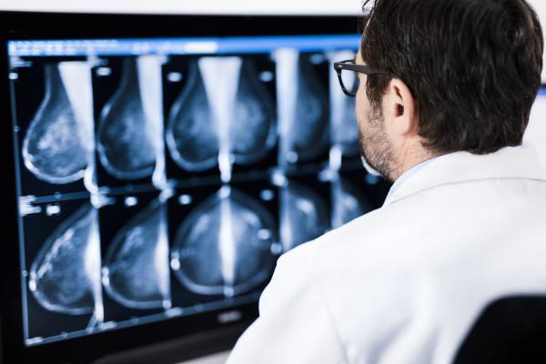 Charlotte Radiology Chooses Sectra as Breast Imaging Vendor