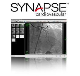 Synapse Cardiovascular version