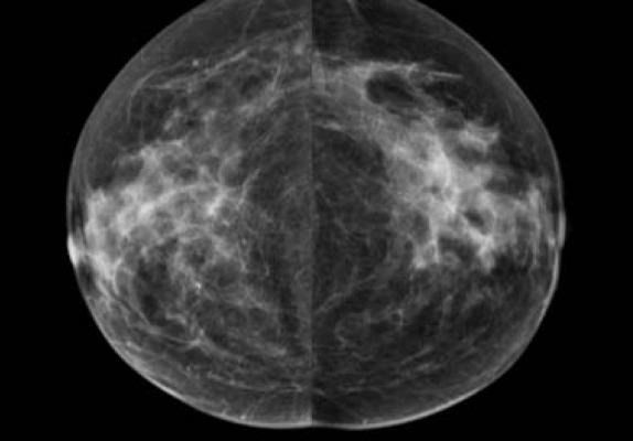 Artificial Intelligence Used in Clinical Practice to Measure Breast Density