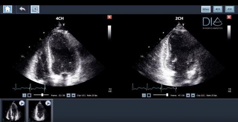 Konica Minolta Healthcare Partners With DiA Imaging Analysis for AI-based Cardiac Ultrasound Analysis