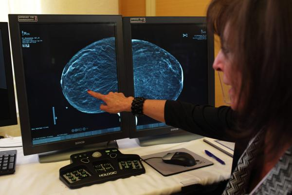 Georgia Becomes 38th State With Breast Density Inform Law