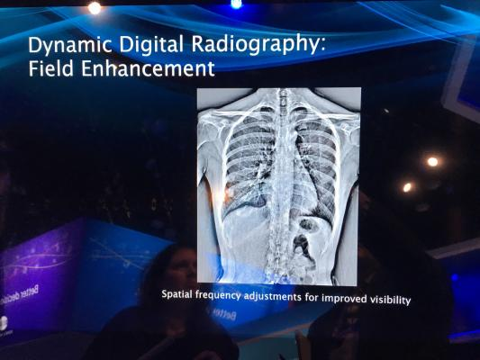 Konica Minolta and Shimadzu to Co-market Dynamic Digital Radiography in the U.S.