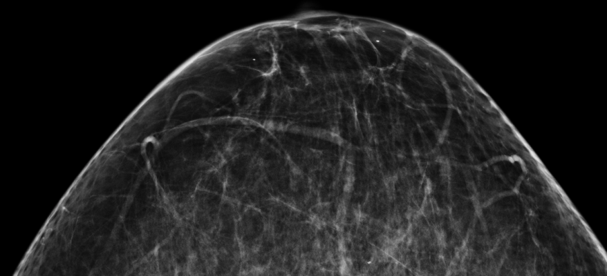 Comparison of Screening Recommendations Supports Annual Mammography. Marilyn Fornell