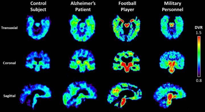 Abnormal Protein Concentrations Found in Brains of Military Personnel With Suspected CTE
