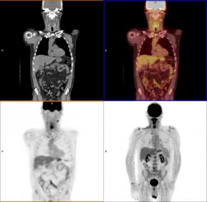 Halving Radiotherapy for HPV-Related Throat Cancer Reduces Side Effects With Similar Control Rates