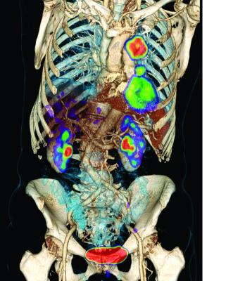 radiotracer, cancer imaging, diagnostics, PET, 18F-FLT