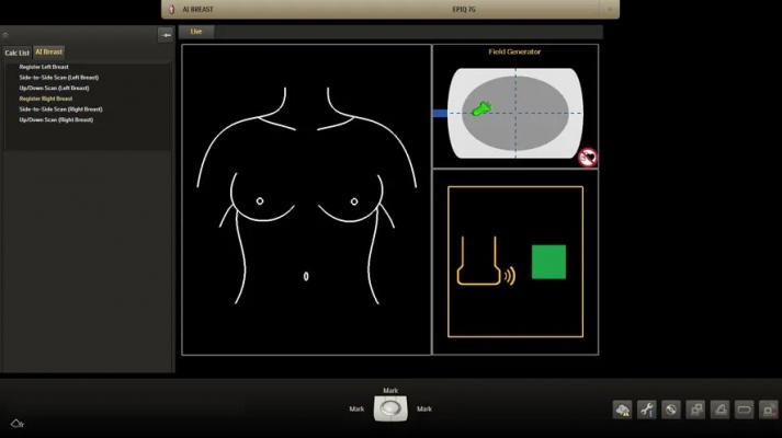 Philips Debuts Integrated Breast Ultrasound Solution