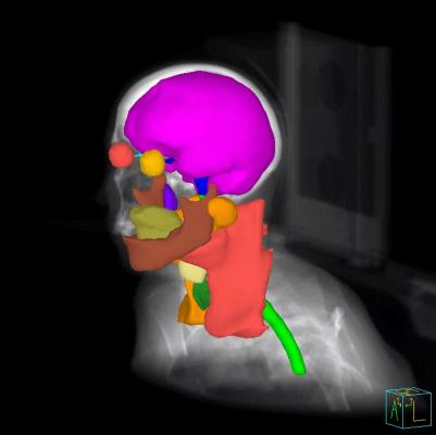 Philips Collaborates With MIM Software on Radiation Therapy Treatment Planning