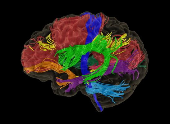 Synaptive Medical Launches Modus Plan With Automated Tractography Segmentation