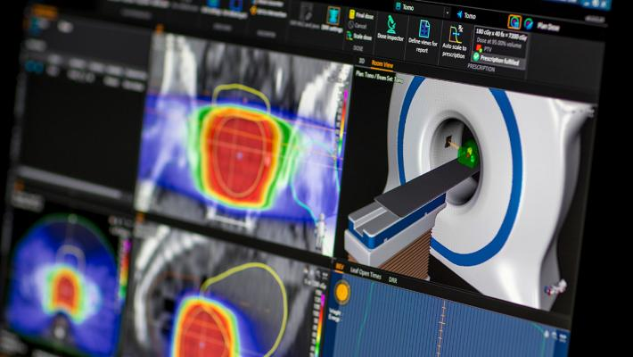 University of Wisconsin-Madison Partners With RaySearch on RayCare OIS