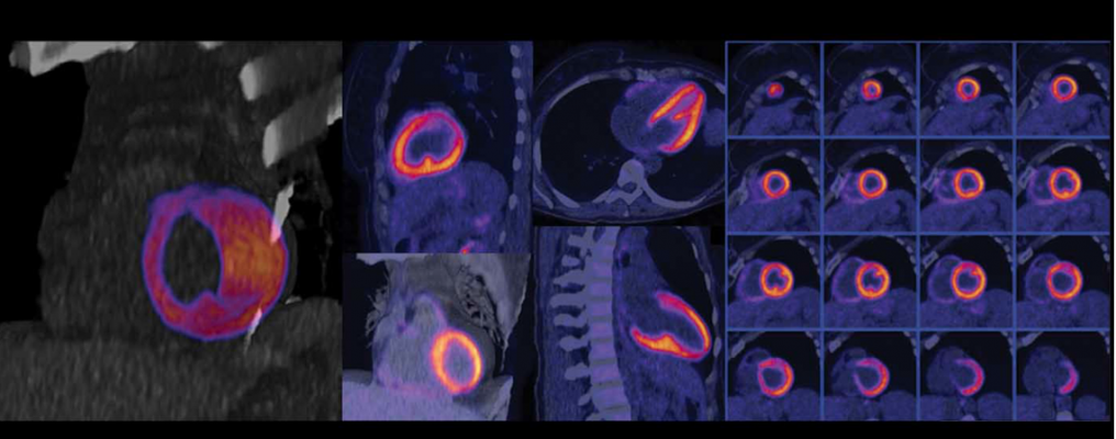 Nuclear myocardial perfusion scan performed on a Biograph Vision positron emission tomography/computed tomography (PET-CT) system from Siemens Healthineers.