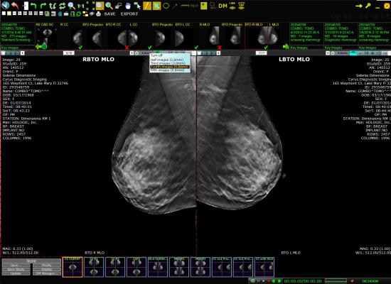 Viztek, Exa PACS, picture archive and communication system, EHR, RSNA 2014