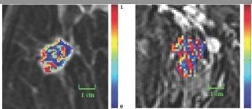 breast MRI, ER-positive breast cancer detection, Case Western Reserve study