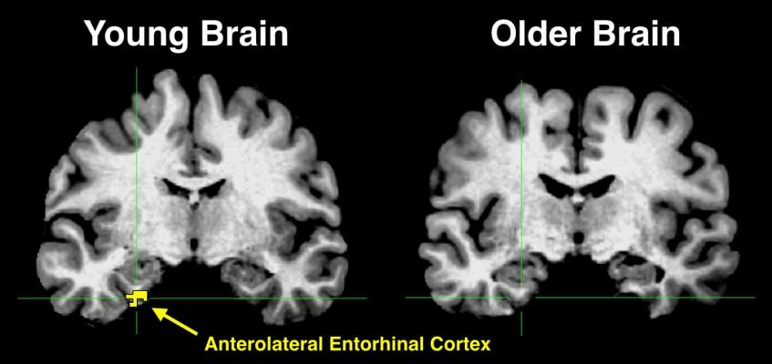 The yellow in the anterolateral entorhinal cortex of the young brain indicates significant activity, something that is absent in the older brain.