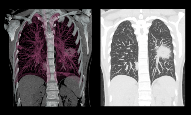 Mesothelioma Imaging and Diagnostics, What to Look For