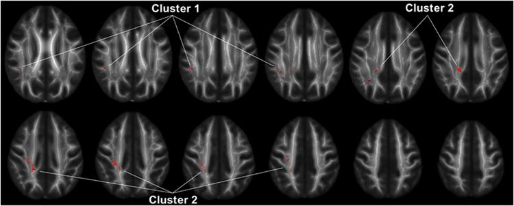 Brain Imaging Reveals Adhd As >> Mri Reveals Decreased Brain Connectivity In People With Anger