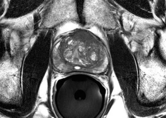 prostate cancer, MRI, diagnosis, PRECISE trial, Canada