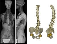 sterEOS 1.5 Orthopedic Imaging X-Ray EOS Imaging