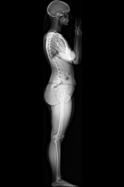 EOS, 3D Service, 3-D modeling, stereo-radiographic images