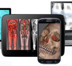 Advanced visualization, RSNA 2014, Remote viewing systems, mobile devices