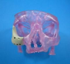 3-D Printed OsteoFab Patient-Specific Facial Device