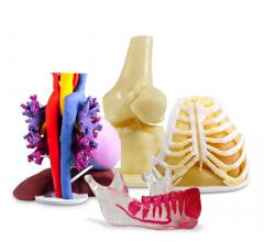 3D Systems Announces On Demand Anatomical Modeling Service