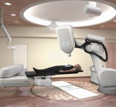 Stereotactic Radiotherapy Improves Long-Term Survival in Stage-IV Cancers