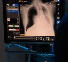 European Society of Radiology and GE Partner on Artificial Intelligence for ECR 2019