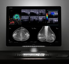 Barco Shares Latest Advances in Multimodality Diagnostic Imaging at RSNA 2017