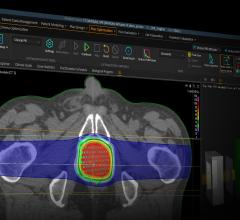 RaySearch Releases Version 9A of RayStation Treatment Planning System