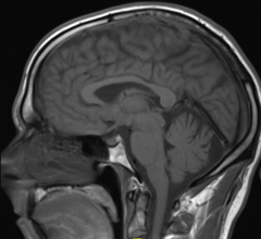 ISMRM Issues Guidelines for MRI Gadolinium Contrast Agents