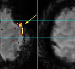 7T MRI Provides Precise 3-D Maps of Brain Activity