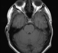 Alzheimer's, phase 3 study, MRI, LMTM, AAIC 2016