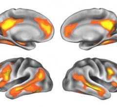 pregnancy brain, pregnant brain, pregnancy's effect on the brain