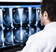 Charlotte Radiology Chooses Sectra as Breast Imaging Vendor