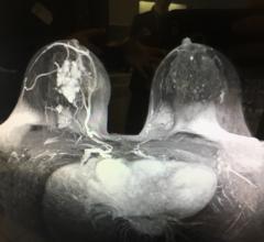 Screening MRI Detects BI-RADS 3 Breast Cancer in High-risk Patients