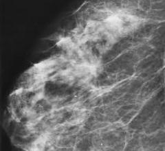 Managing Architectural Distortion on Mammography Based on MR Enhancement