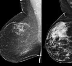 Kentucky and Iowa Enact Breast Density Reporting Legislation