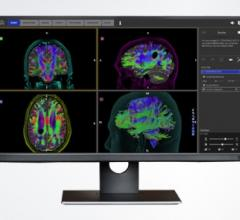 Stryker's Advanced Guidance Technologies Partners With Synaptive Medical and Ziehm Imaging